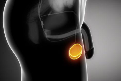 Torsión testicular: tan doloroso como peligroso