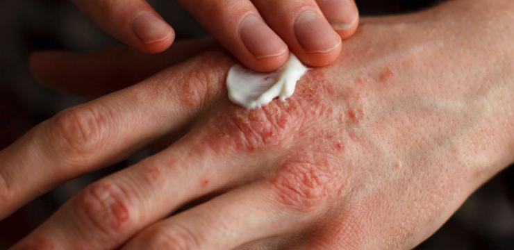 La historia clínica a atopicheskom la dermatitis