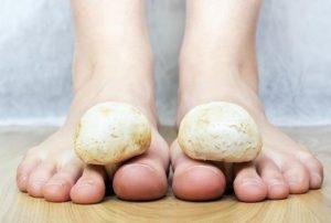 Cómo tratar los hongos en los pies: cuidados y consejos naturales