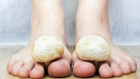 Cómo tratar los hongos en los pies