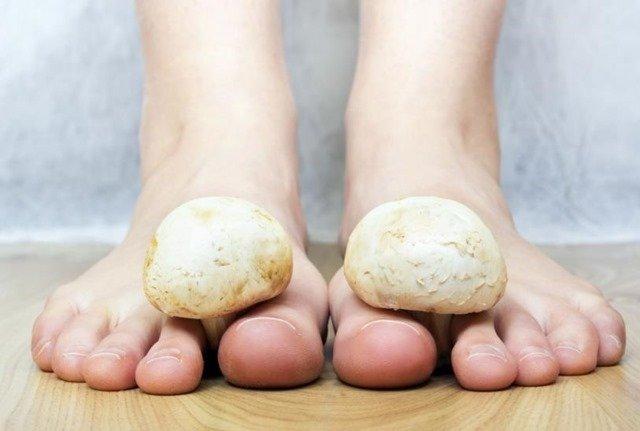 Cuidados para el tratamiento de los hongos en los pies