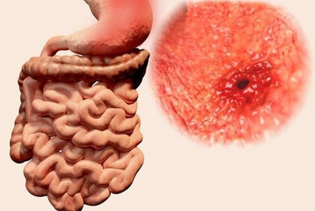 ulcera-gastritis