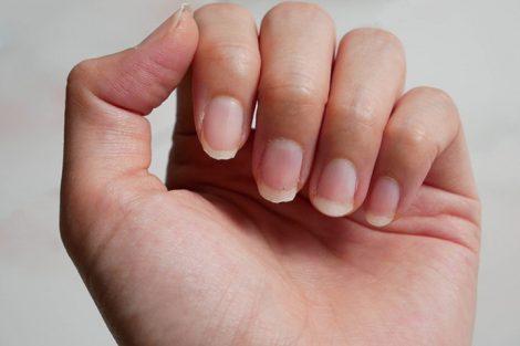 Causas de las uñas débiles y tratamientos para fortalecerlas