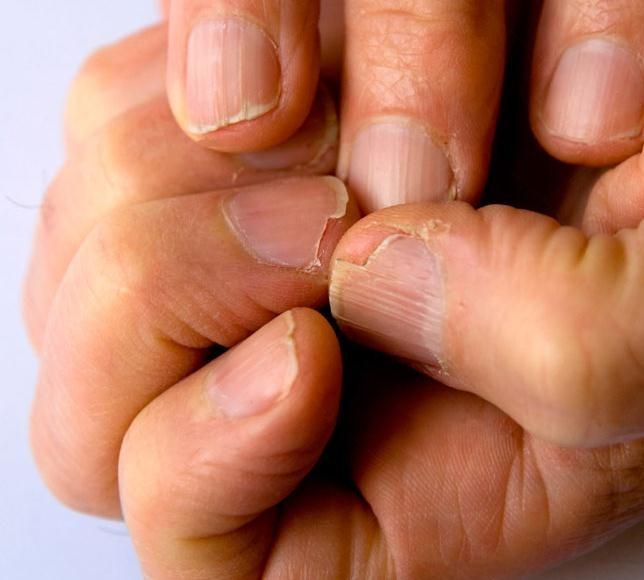 Uñas frágiles