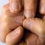 Uñas quebradizas y escamadas: causas y tratamiento natural de pepino