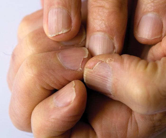 Uñas Quebradizas Y Escamadas Causas Y Tratamiento Natural