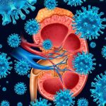 Uremia: qué es, síntomas, causas y tratamiento