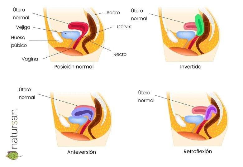 utero-invertido