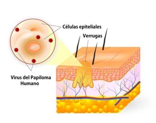 verrugas-genitales